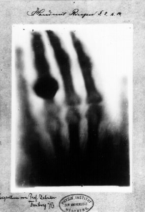 la prima radiografia a raggi X